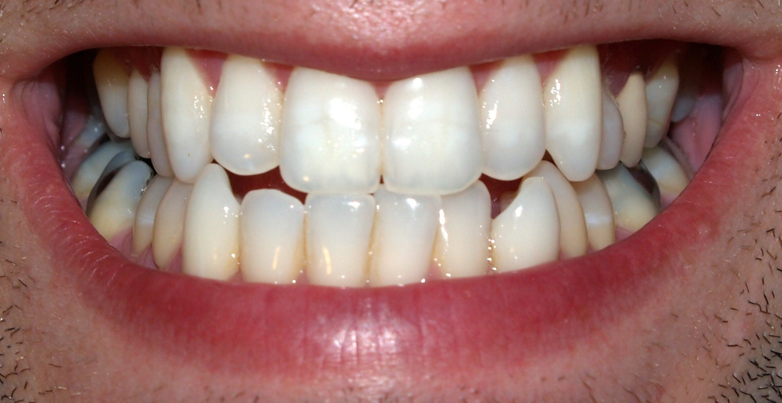 What You Need To Know About Dental Biometrics M2sys Blog On