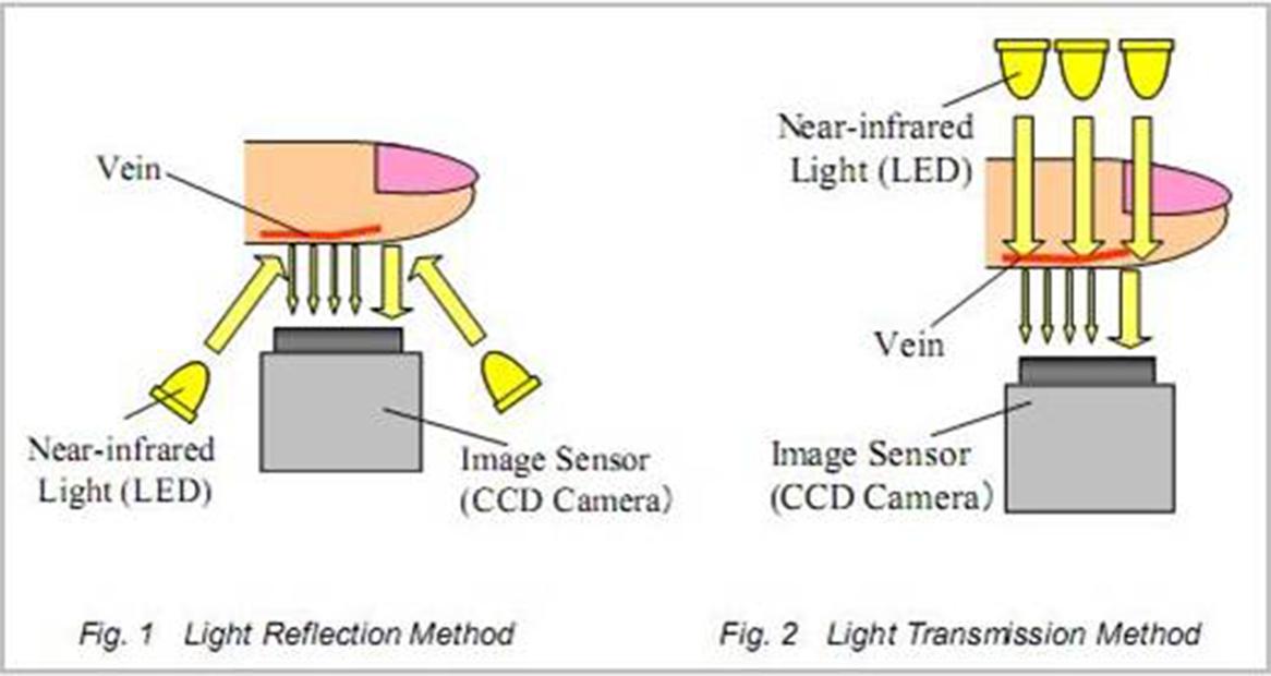 how-vascular-scanner-works